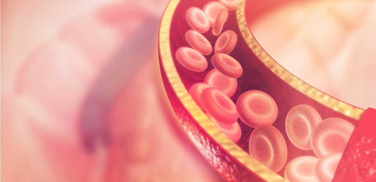 colesterolo-arterie